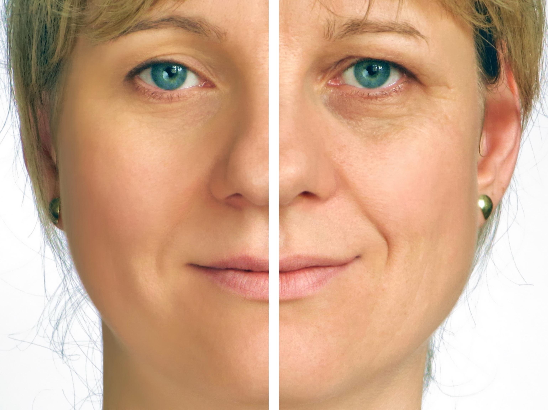 confronto tra prima e dopo del trattamento viso